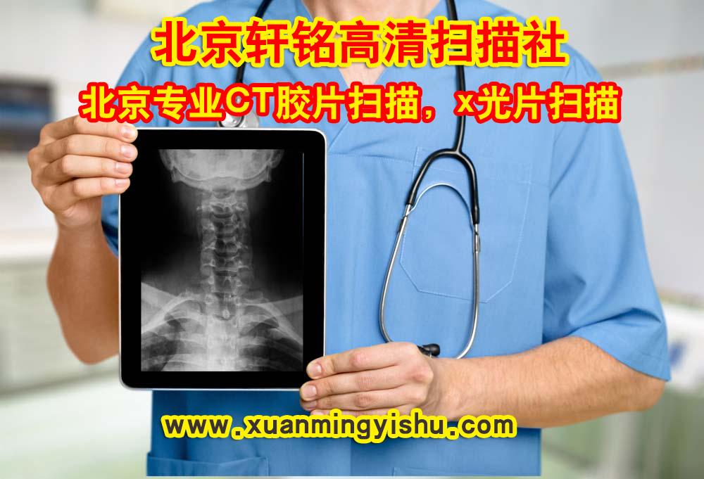 轩铭X光片扫描社|核磁共振CT片扫描是个怎样的地方
