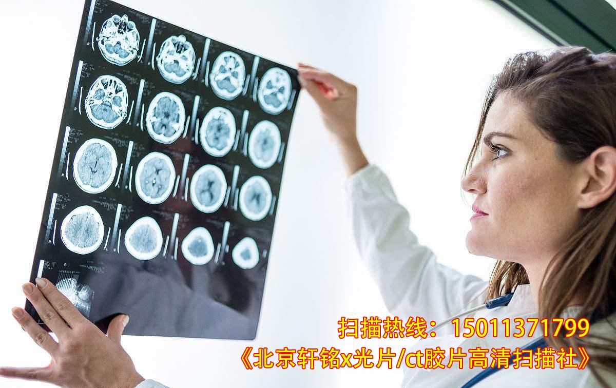 北京核磁共振胶片扫描|ct片扫描|x光片扫描