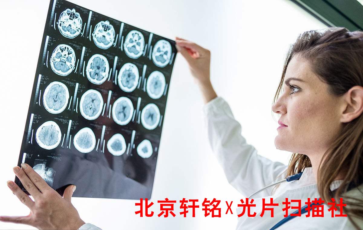 北京哪里能扫核磁共振片的?怎样将核磁共振片,X光片,CT扫描成电子版呢?