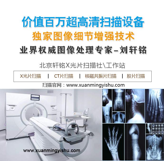 CT胶片扫描_核磁共振胶片扫描_20亿像素超高清x光片扫描
